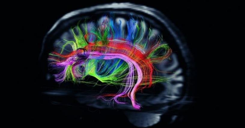 cerebro-1_816x428